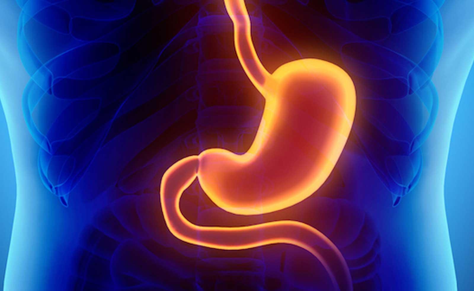 Cuántos tipos de gastritis existen - Cuál es la más peligrosa - Cómo aliviar la gastritis