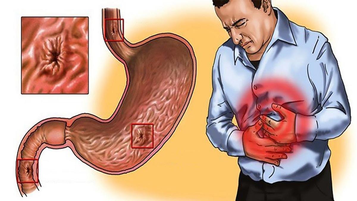 Gastritis Erosiva - Cuántos tipos de gastritis existen - Cuál es la más peligrosa - Cómo aliviar la gastritis